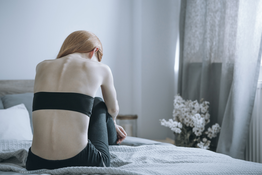 eating disorders Woman with anorexia on bed